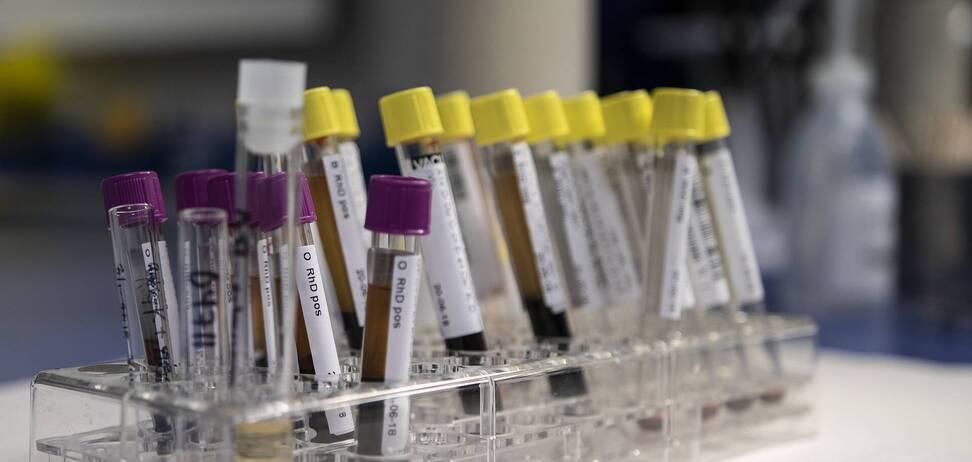 Новое исследование помогло определить в крови испытуемых еще 34 признака РАС