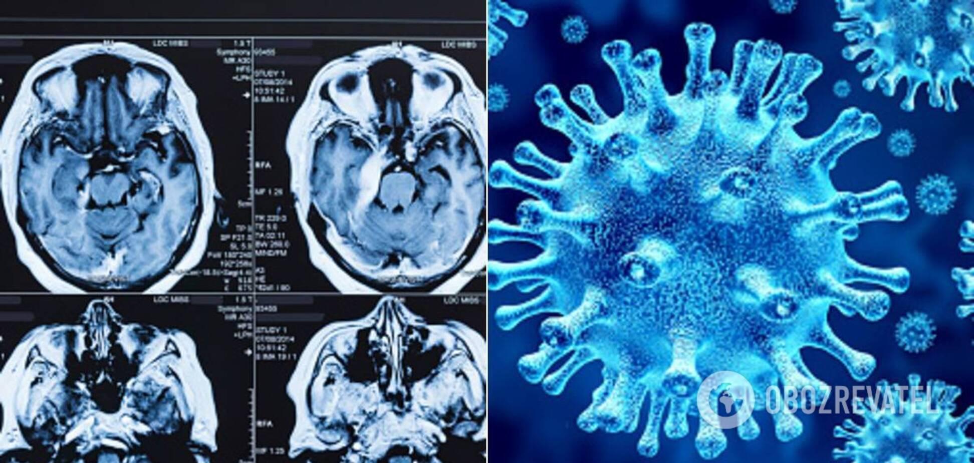 Коронавирус может привести к повреждению мозга
