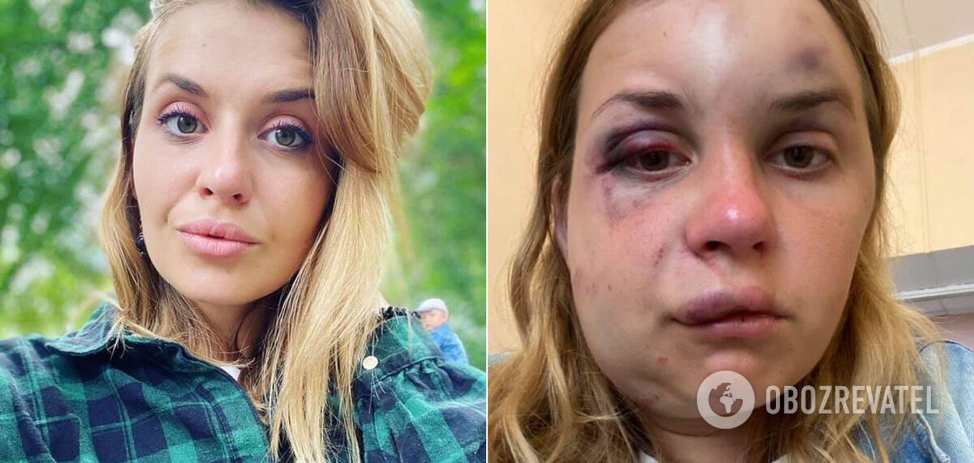 Анастасия Луговая до и после нападения