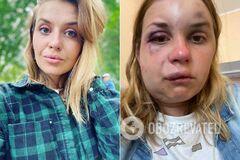 Анастасія Лугова до і після нападу