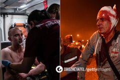 Минские врачи рассказали о тяжелых ранениях протестующих