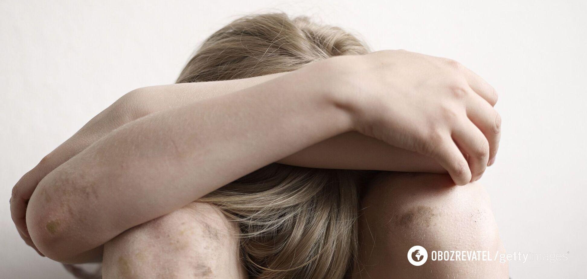 В Херсоне врачи нашли на теле малыша следы побоев: опекун заявила, что ребенок упал