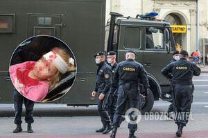 В Беларуси при разгоне ОМОНом пострадал 5-летний ребенок: вся в крови, наложили 4 шва. Фото