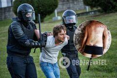 В Беларуси избили протестующих