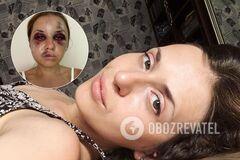После избиения Анастасии Луговой в поезде украинки запустили флешмоб против насилия