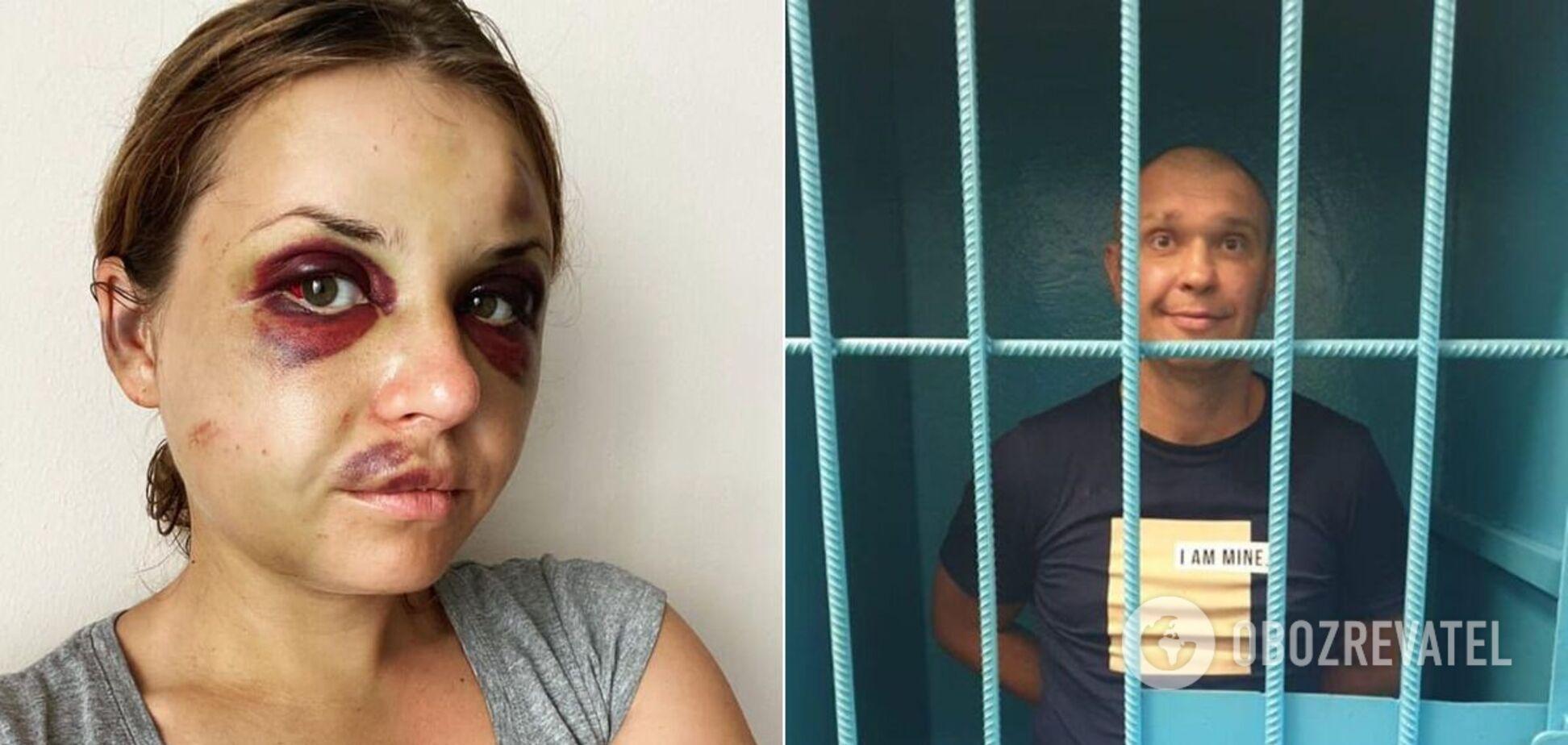 Анастасия Луговая подверглась нападению ВиталияРудзько