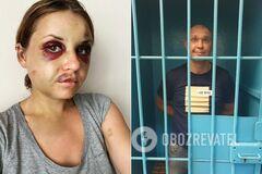 Анастасія Лугова піддалася нападу Віталія Рудзька