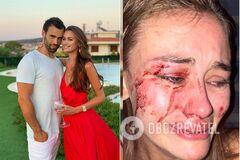 Дар'ю Кирилюк міг побити її хлопець