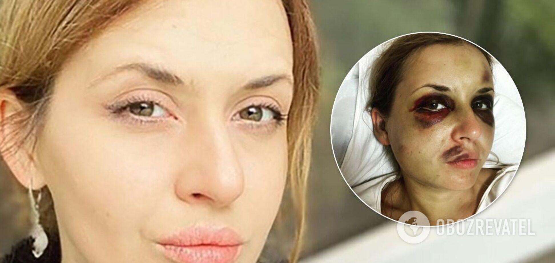 Анастасія Лугова до та після нападу
