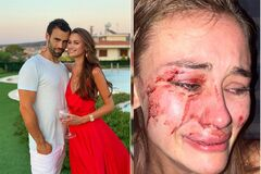 Дарья Кирилюк была избита в Турции из-за ревности