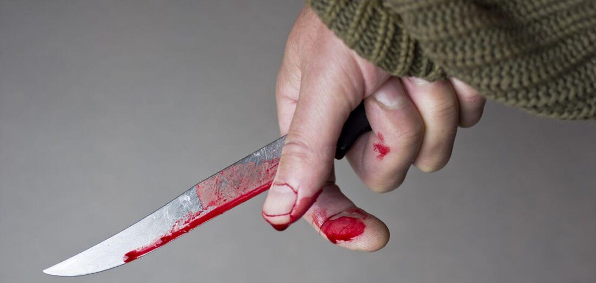 У Кривому Розі чоловік завдав приятелю два ножових поранення: подробиці