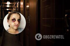 Женщина, на которую напал насильник в поезде на Киев, могла допустить ошибку, – психоаналитик
