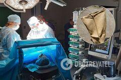 На Николаевщине врачи заставили женщину забрать в мешке ампутированные ноги мужа