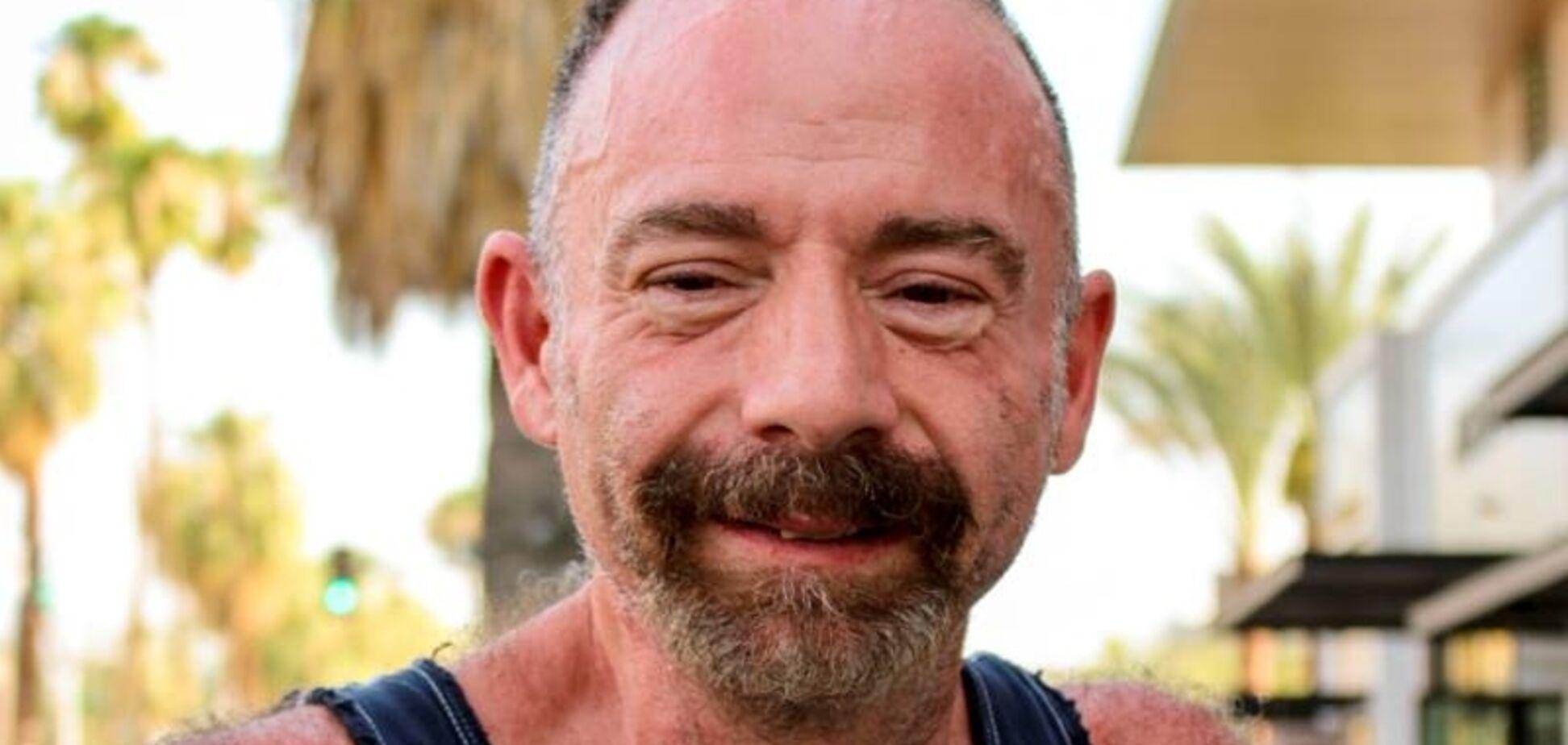 Первый в мире пациент, победивший ВИЧ, умер от лейкемии
