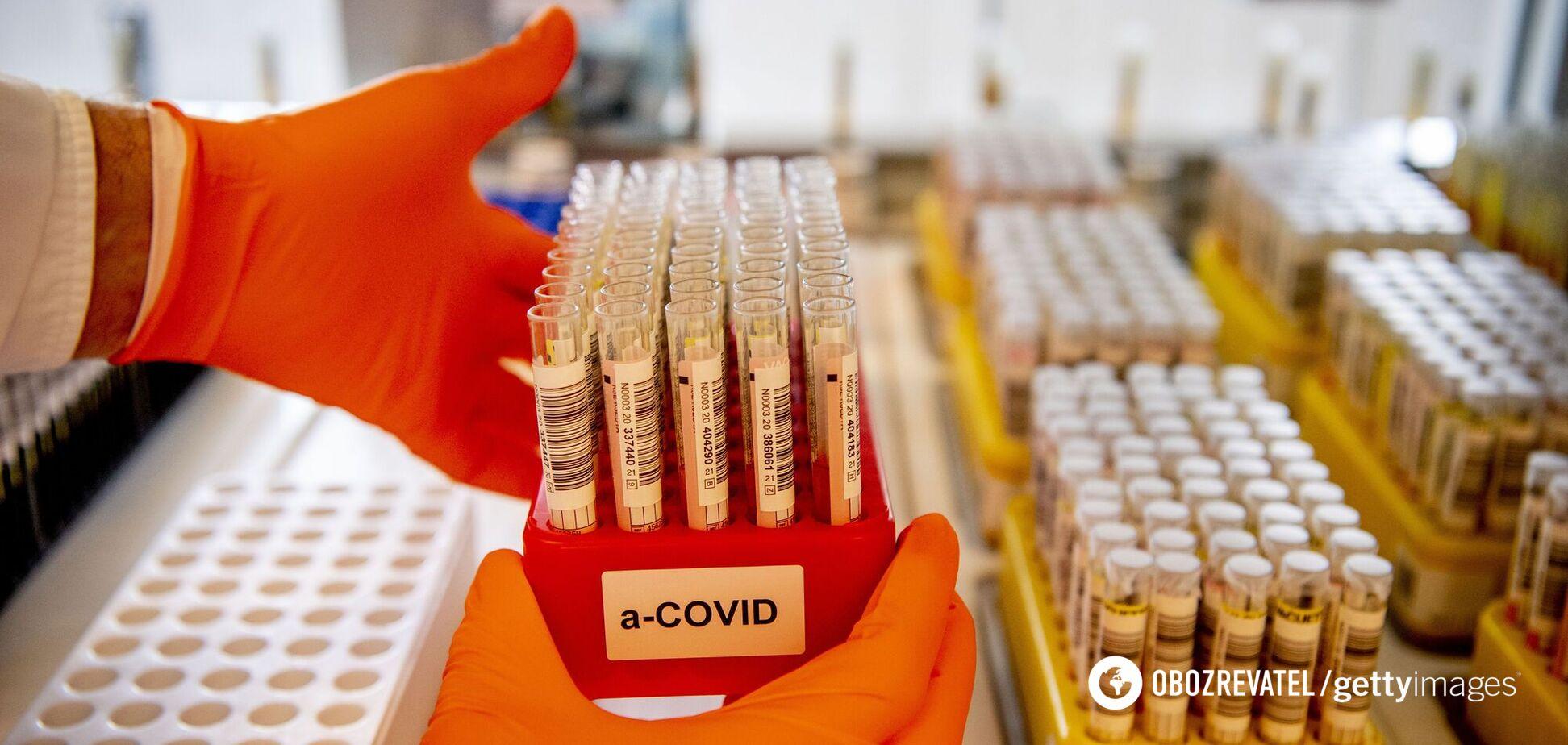 Тесты на COVID-19 станут массовыми в Украине, медиков будет не хватать, – экс-главный санврач
