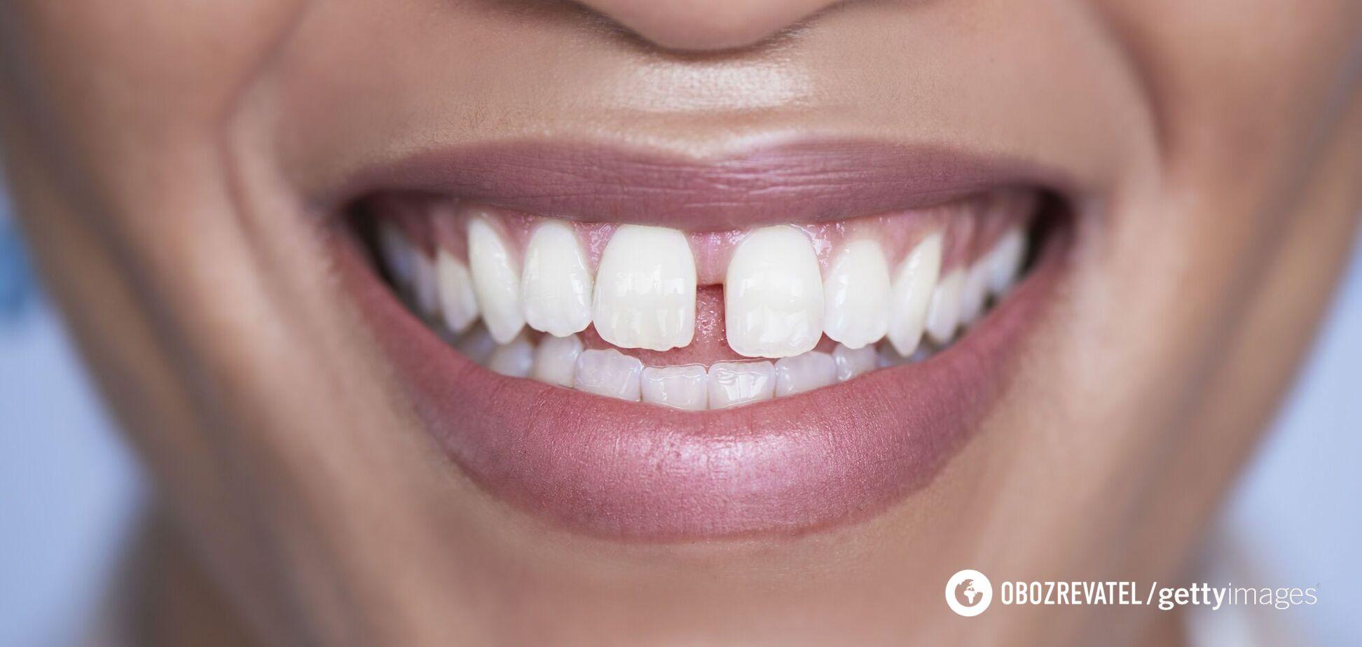 У TikTok з'явився новий небезпечний челендж зі спилювання зубів