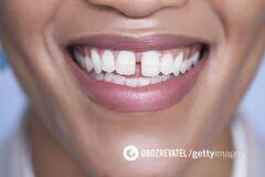 В TikTok появился новый опасный челлендж со спиливанием зубов
