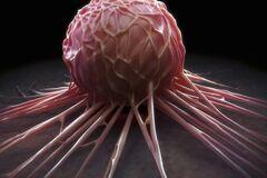 Ученые назвали способ предотвратить смертельную стадию рака