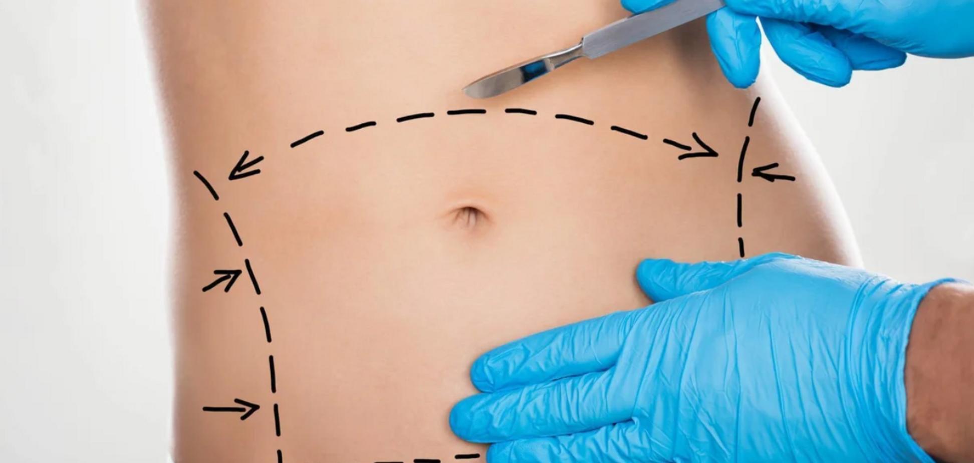 Подтягиваем животы: пластический хирург рассказал правду об абдоминопластике