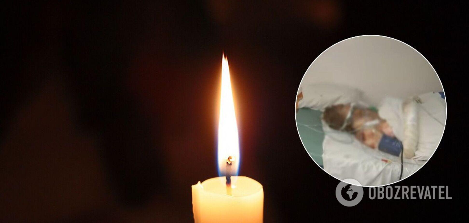 В опіковому центрі Хмельницька померла жінка