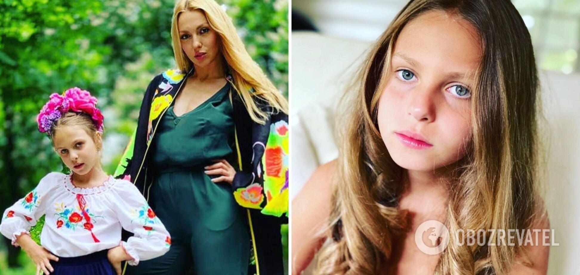 10-річну доньку Олі Полякової покусав вуличний кіт і заразив інфекцією. Відео