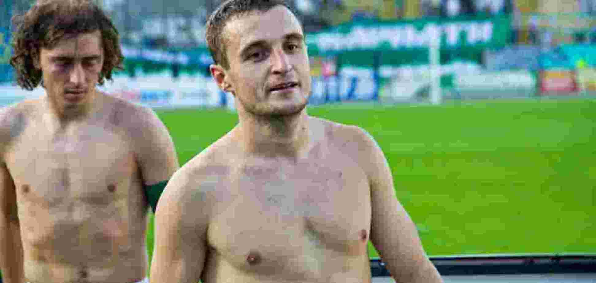 Український футболіст підтримав Лукашенка: 'Геї – хворі люди'