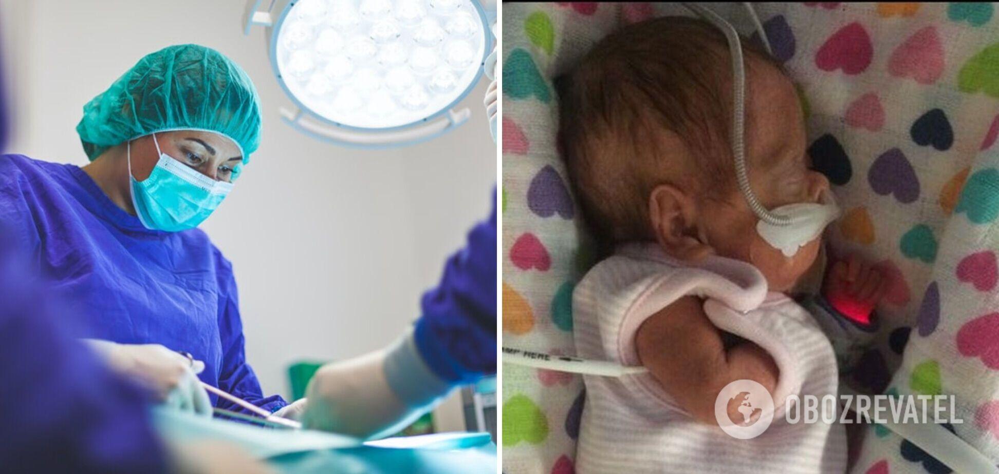 Лікарям вдалося врятувати новонароджену, яка важила 650 грамів: ось як вона виглядає через чотири роки. Фото
