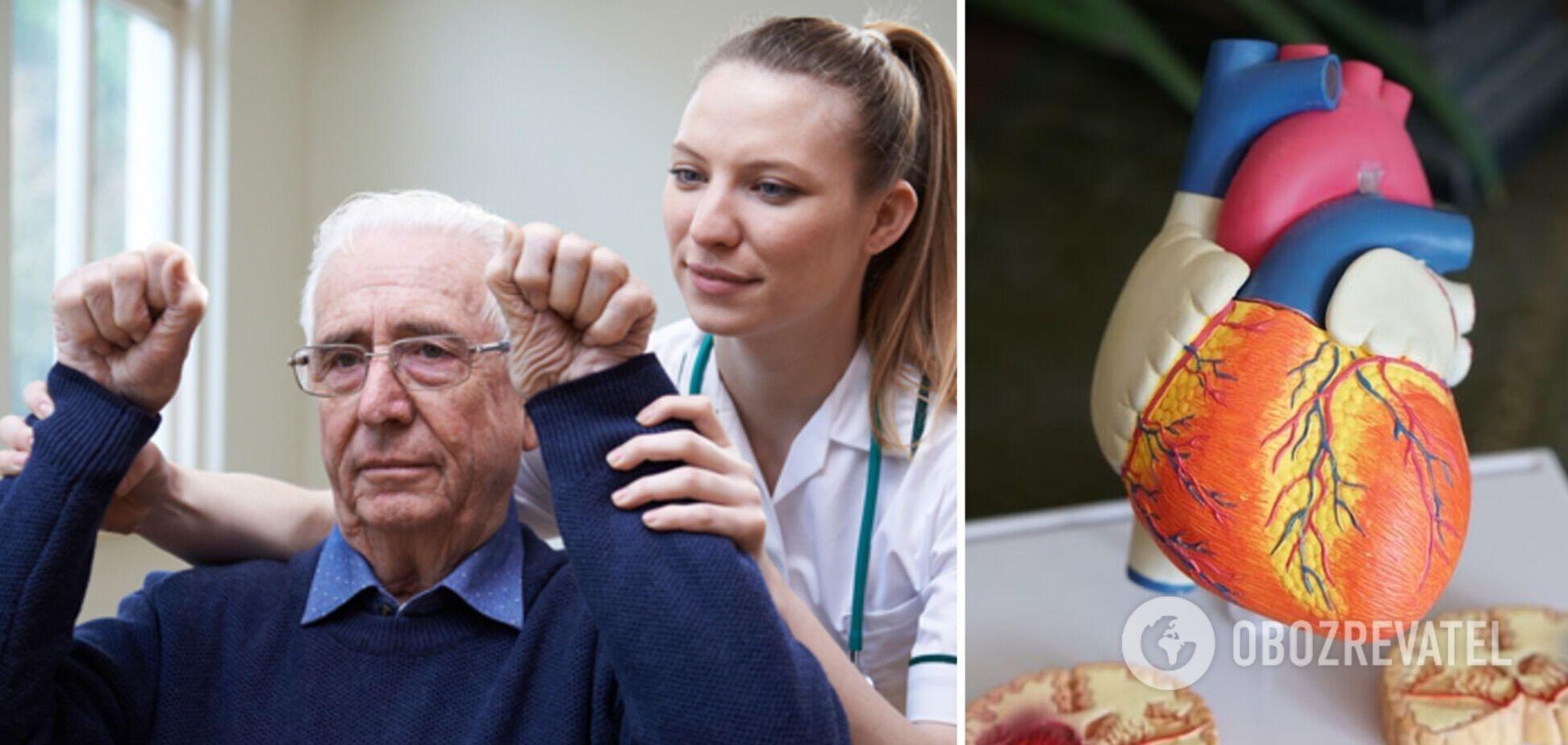 Відмова від деяких продуктів може знизити ризик інсульту на 80%: результати дослідження