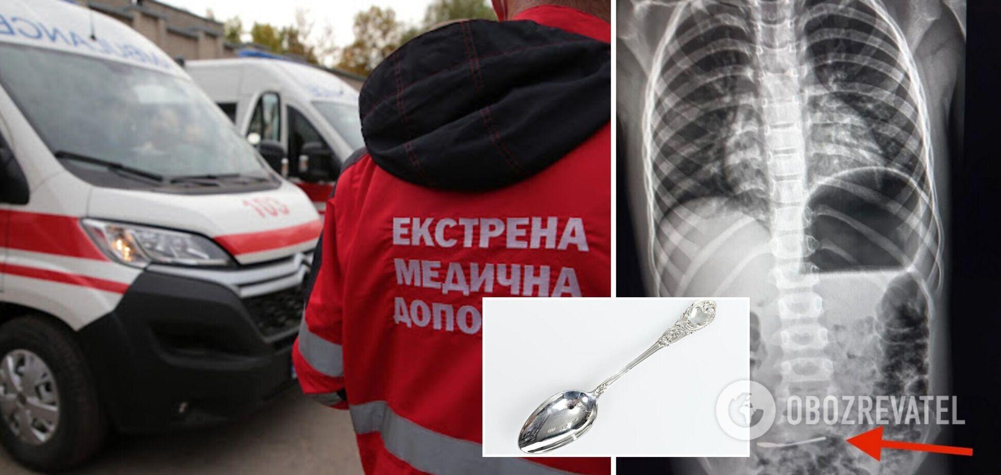 В Харькове 6-летний ребенок проглотил ложку: что известно о состоянии малыша. Фото