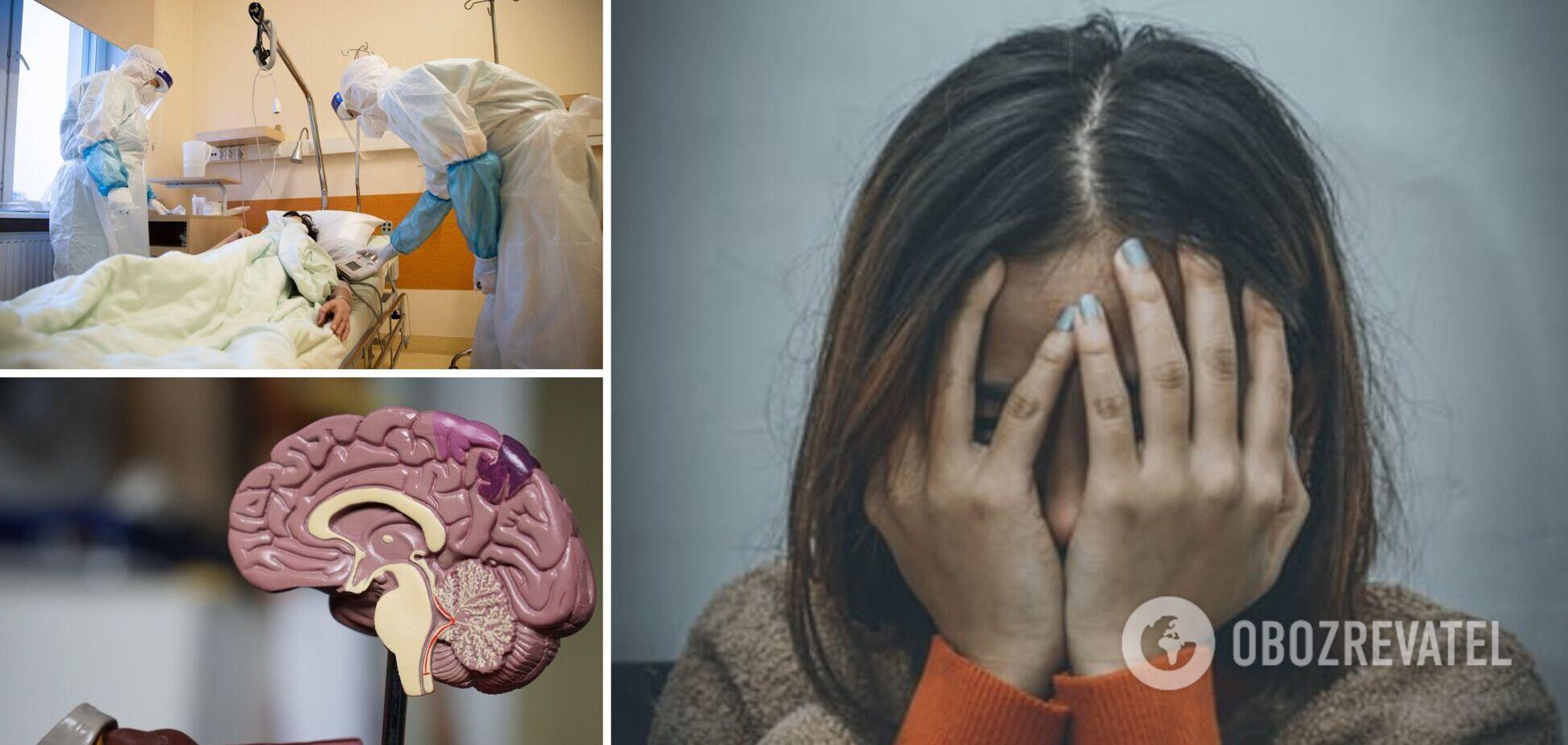 Перехворілі на COVID-19 можуть страждати від когнітивних порушень більш ніж через 7 місяців після зараження, – вчені