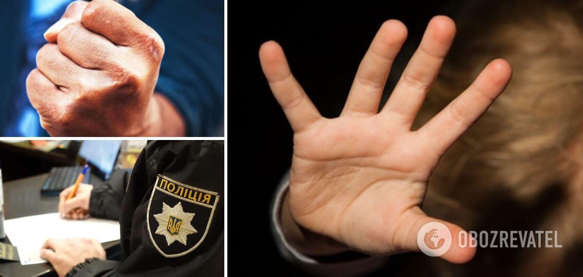 На Житомирщині вітчим побив 8-річну дівчинку, поки її мати була в лікарні: деталі НП