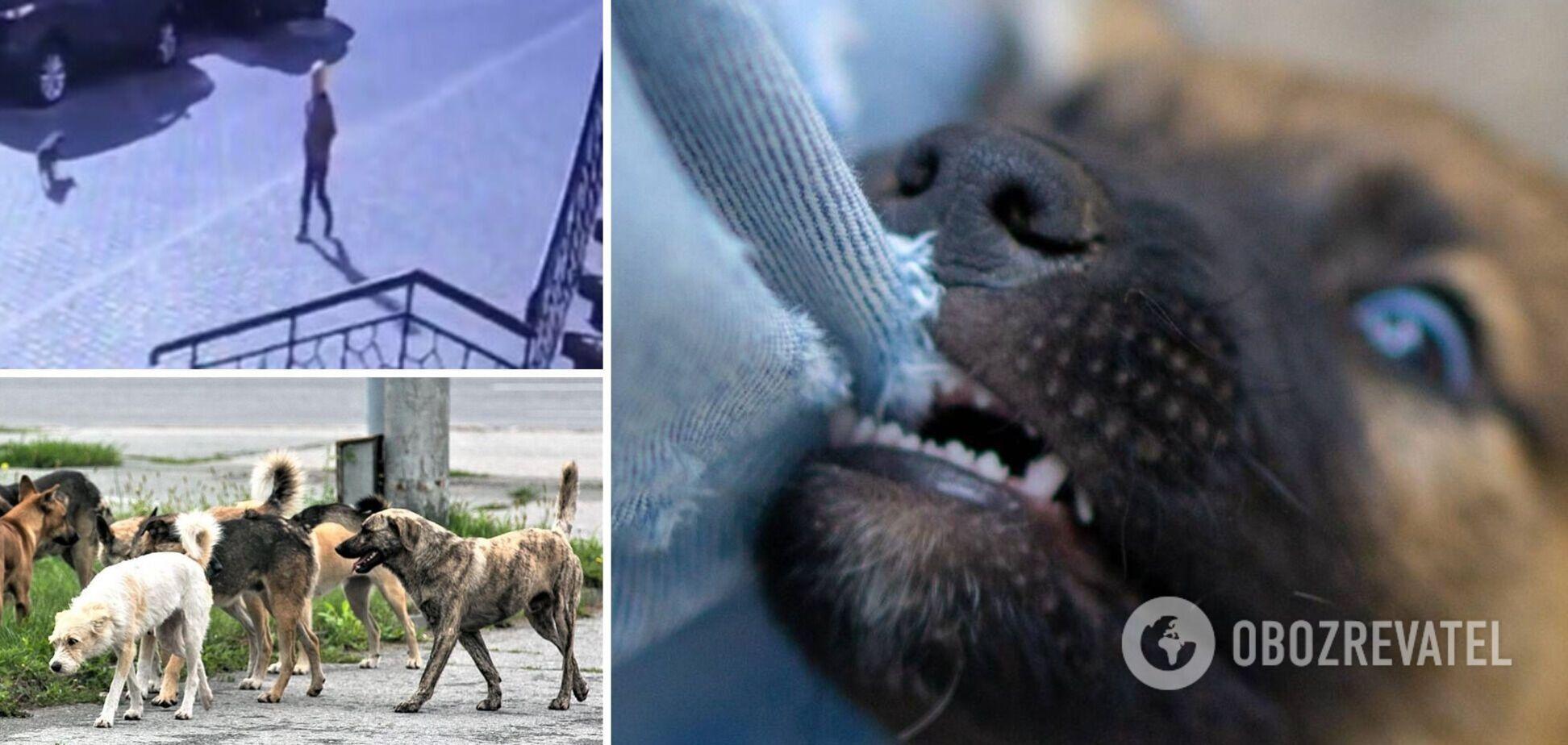 В Одесі зграя собак напала на 8-річну дитину: з'явилися дані про її стан. Відео