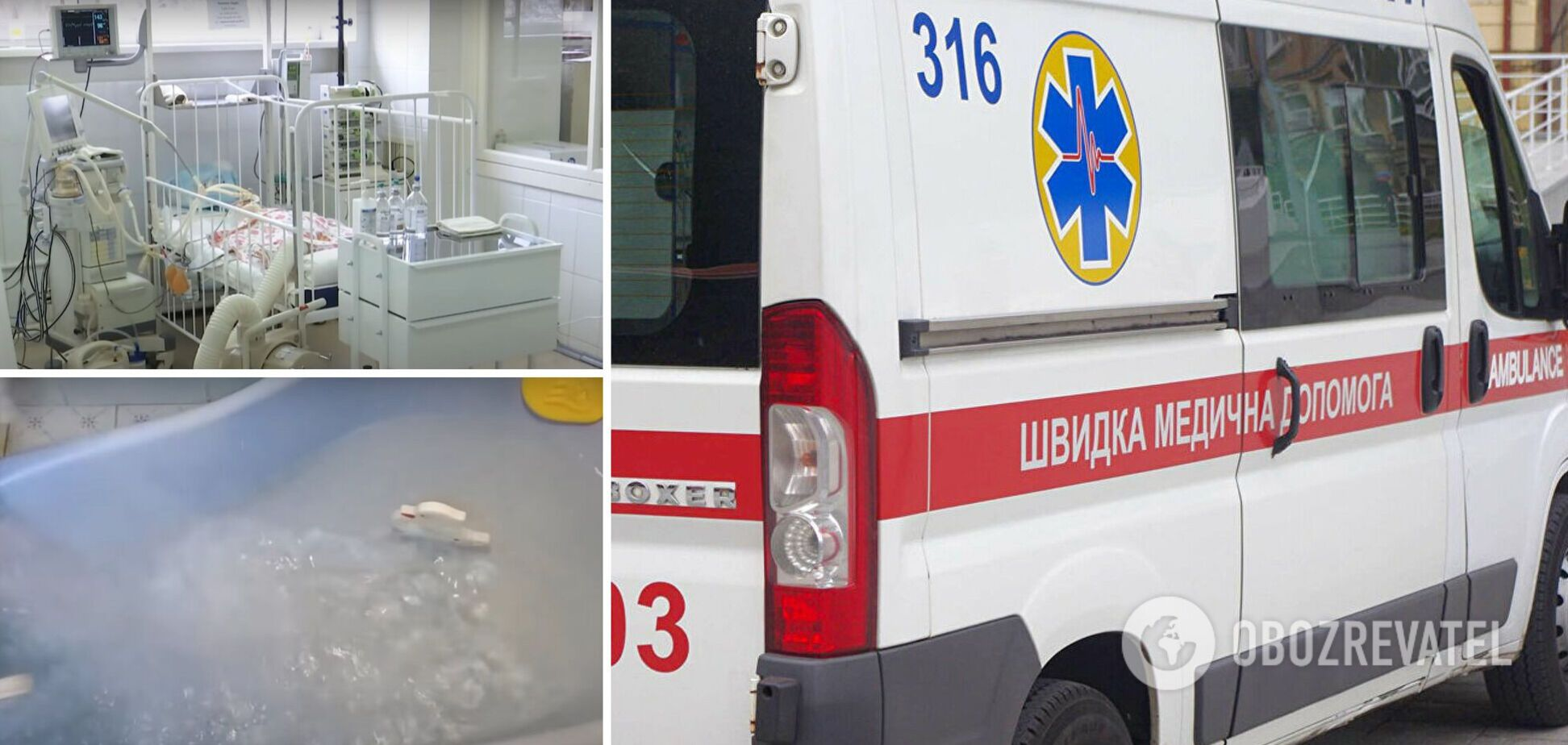На Дніпропетровщині однорічна дівчинка стрибнула в ванну з окропом: лікарі борються за життя. Відео