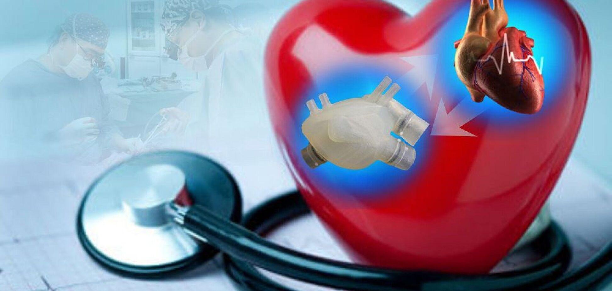 Спасение вашего сердца: к чему пришла современная кардиохирургия