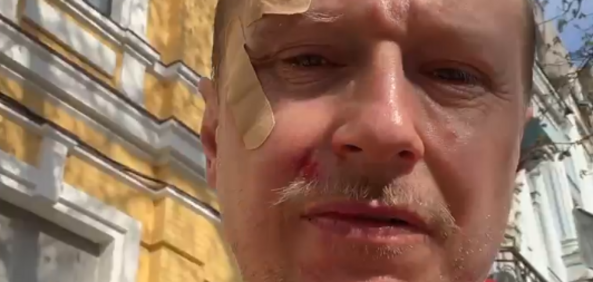 В Киеве избили Майкла Щура