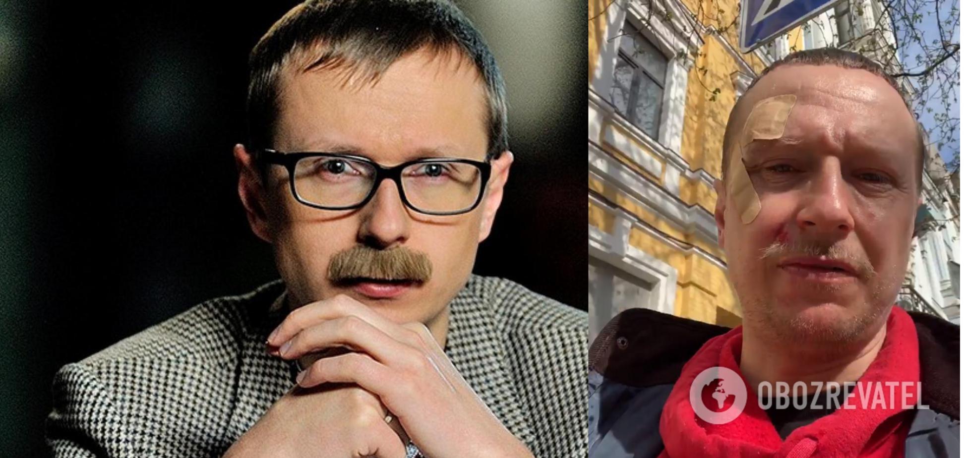 В Киеве избили ведущего 'Телебачення Торонто' Майкла Щура. Видео