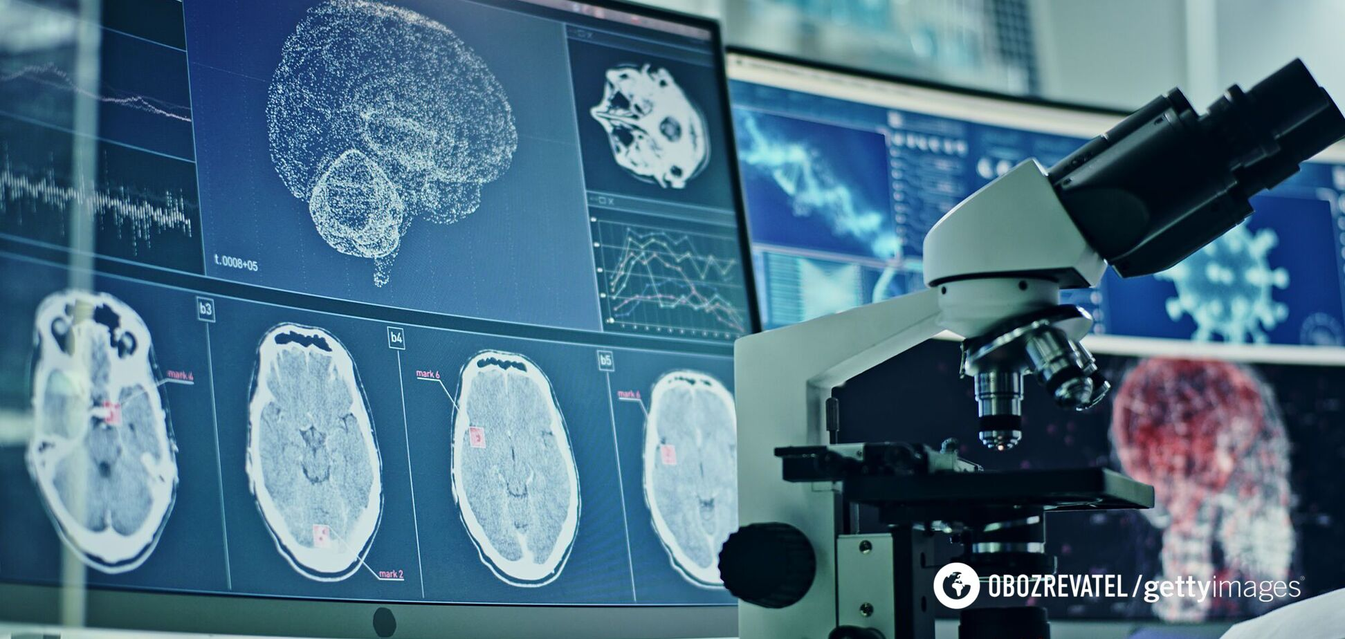 Коронавирус поражает мозг человека