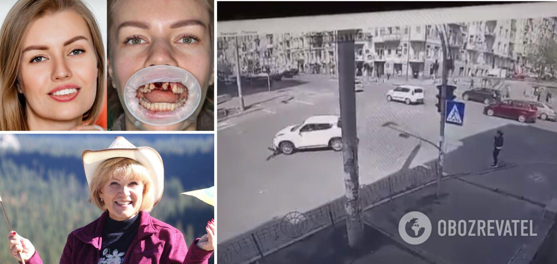 ДТП с бывшим врачом СЭС Киева: пострадавшая девушка лишилась передних зубов и не сможет сама рожать