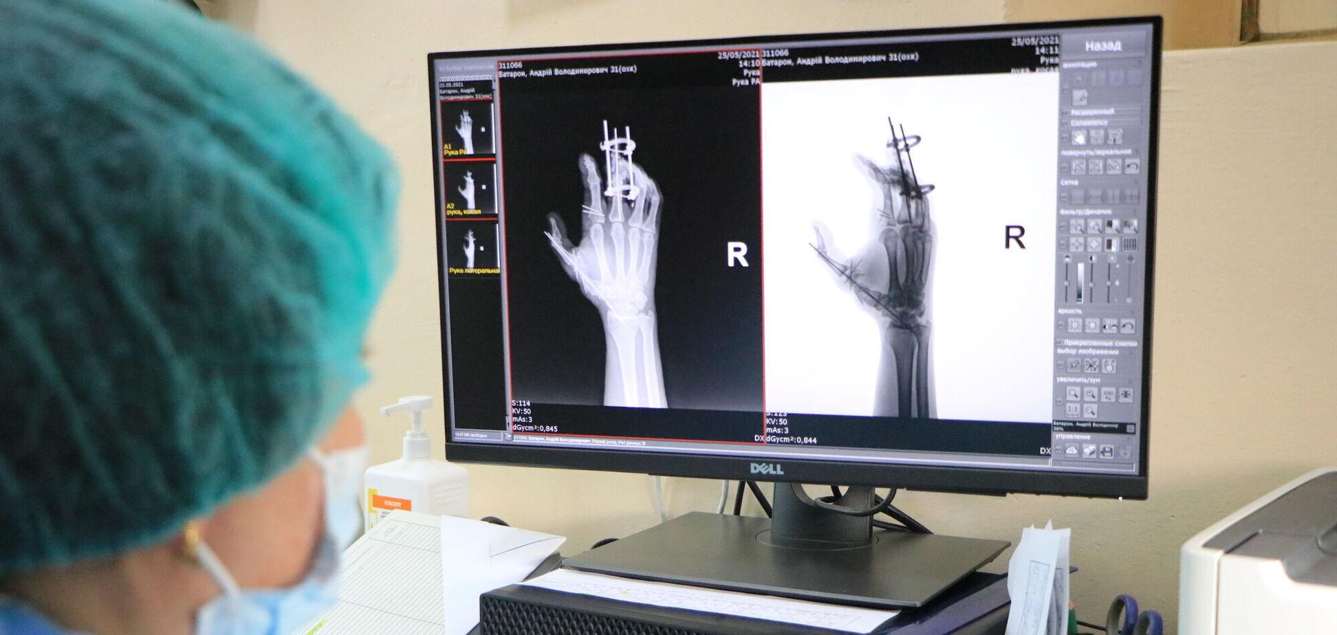 У 16-й лікарні Дніпра запрацював новітній цифровий рентгенапарат, який робить більше ніж 150 знімків на день