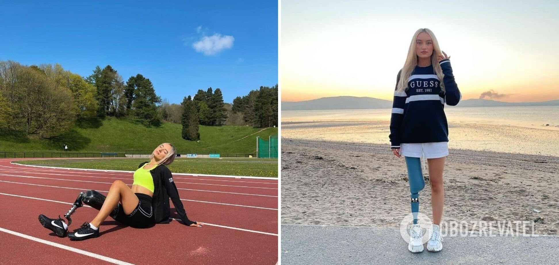 25-річна дівчина без ноги дійшла до фіналу національного конкурсу краси