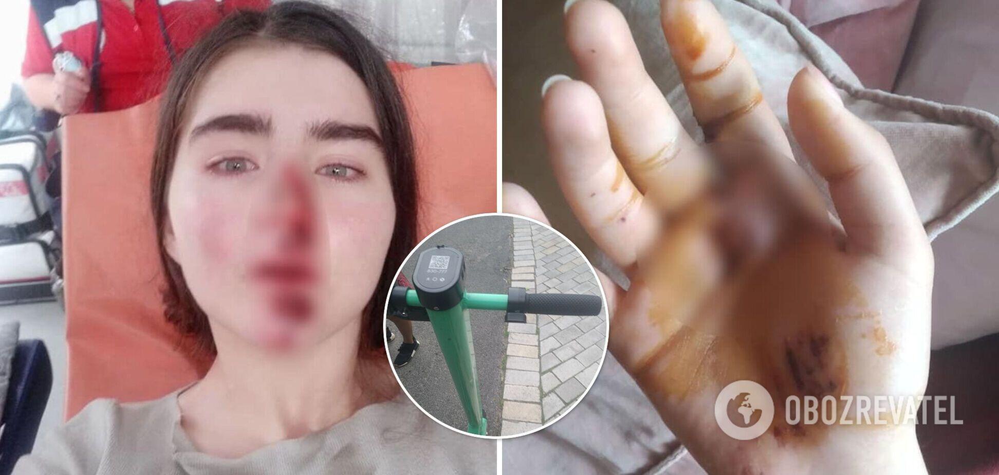 У Києві дівчина розбила обличчя через несправний самокат: за це їй запропонували 200 гривень. Фото