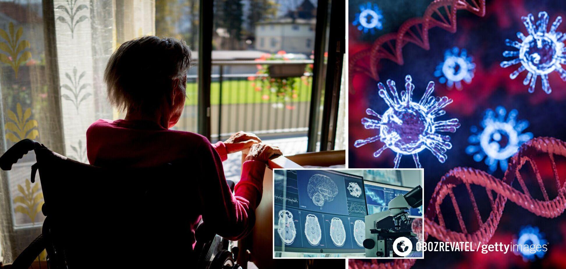 COVID-19 может провоцировать деменцию, похожую на болезнь Альцгеймера – ученые