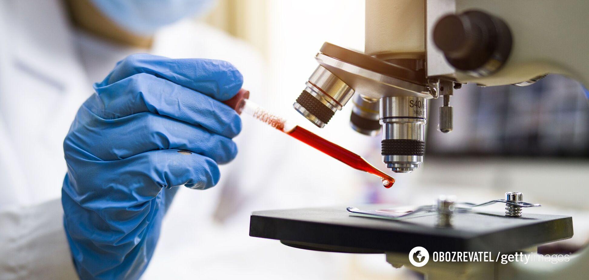 Ученые предложили лечить больных антителами