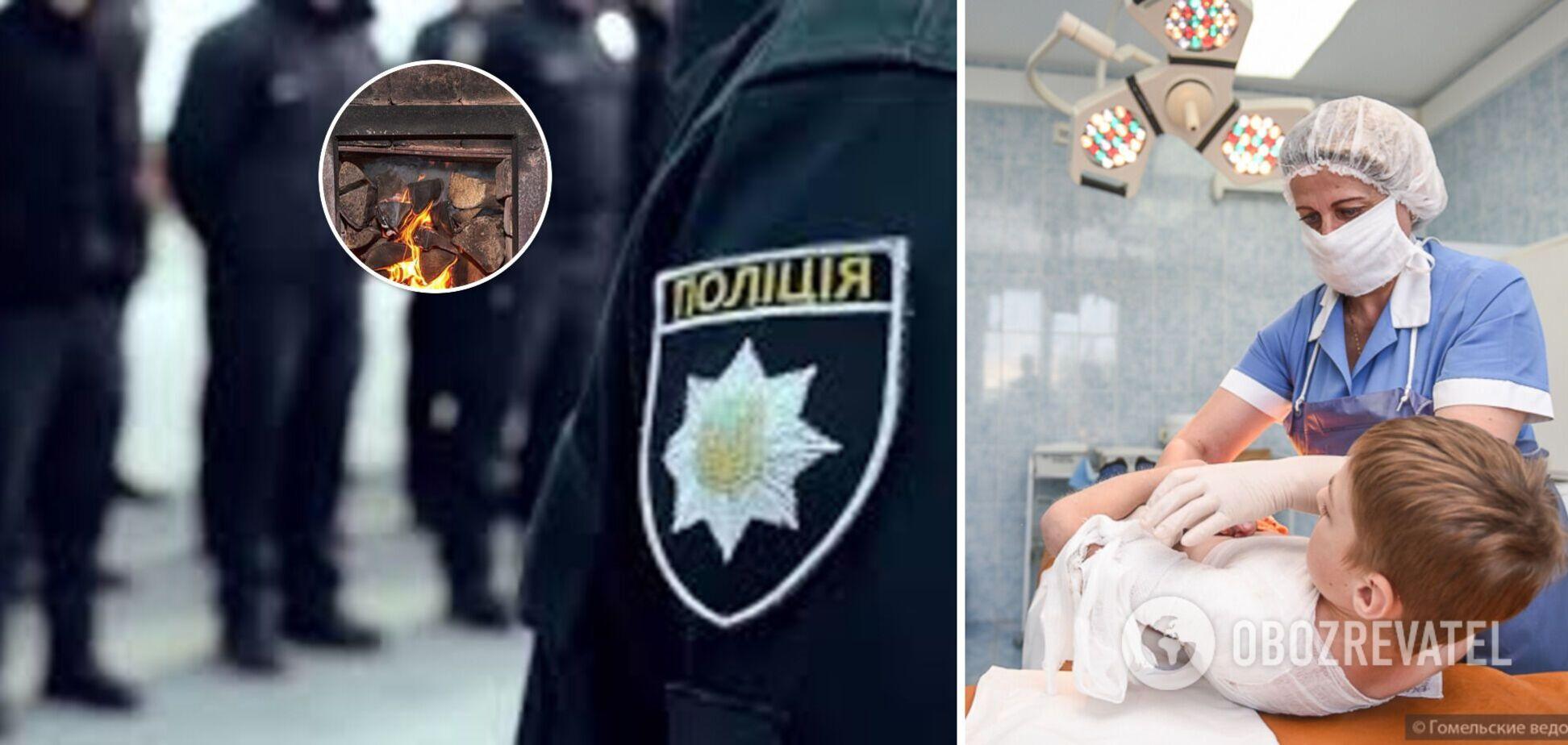 В Одеській області троє дітей отримали опіки обличчя та рук через недбалість батька