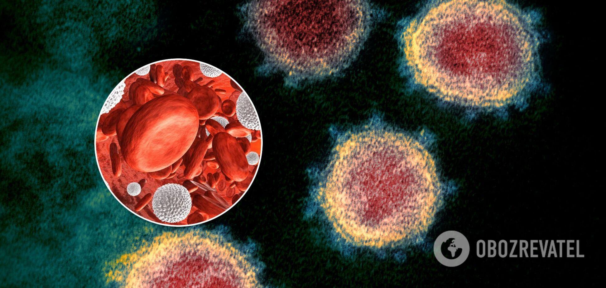 Постковидный синдром запускает 'взрывчатка' в крови, – профессор Досенко
