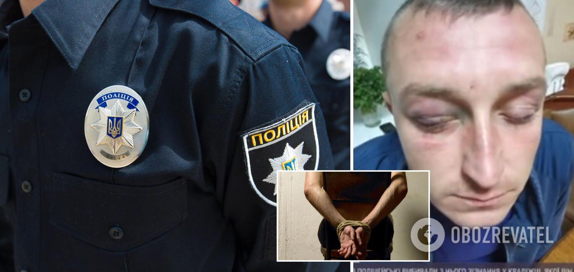 На Сумщине инкассатор заявил об пытках полицией: выбивали признания и держали за ноги с моста
