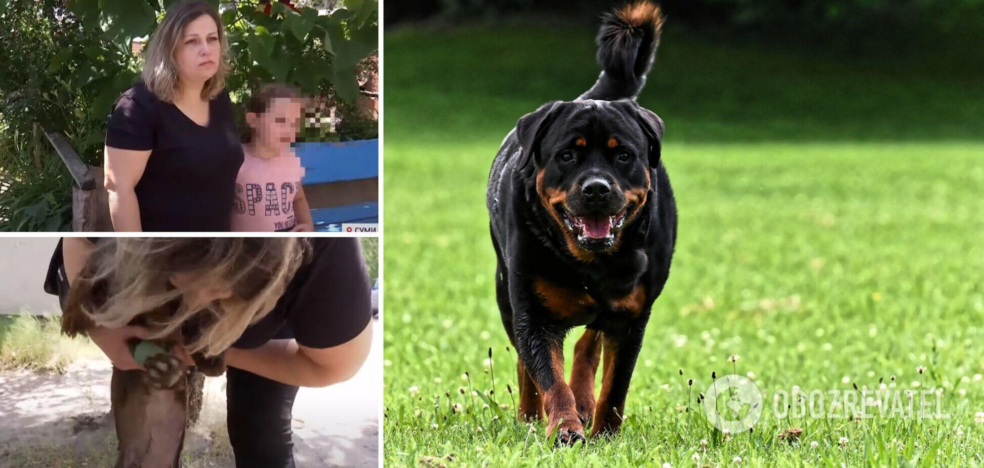 У Сумах собаки охоронців накинулися і покусали батька з 8-річною дитиною. Відео