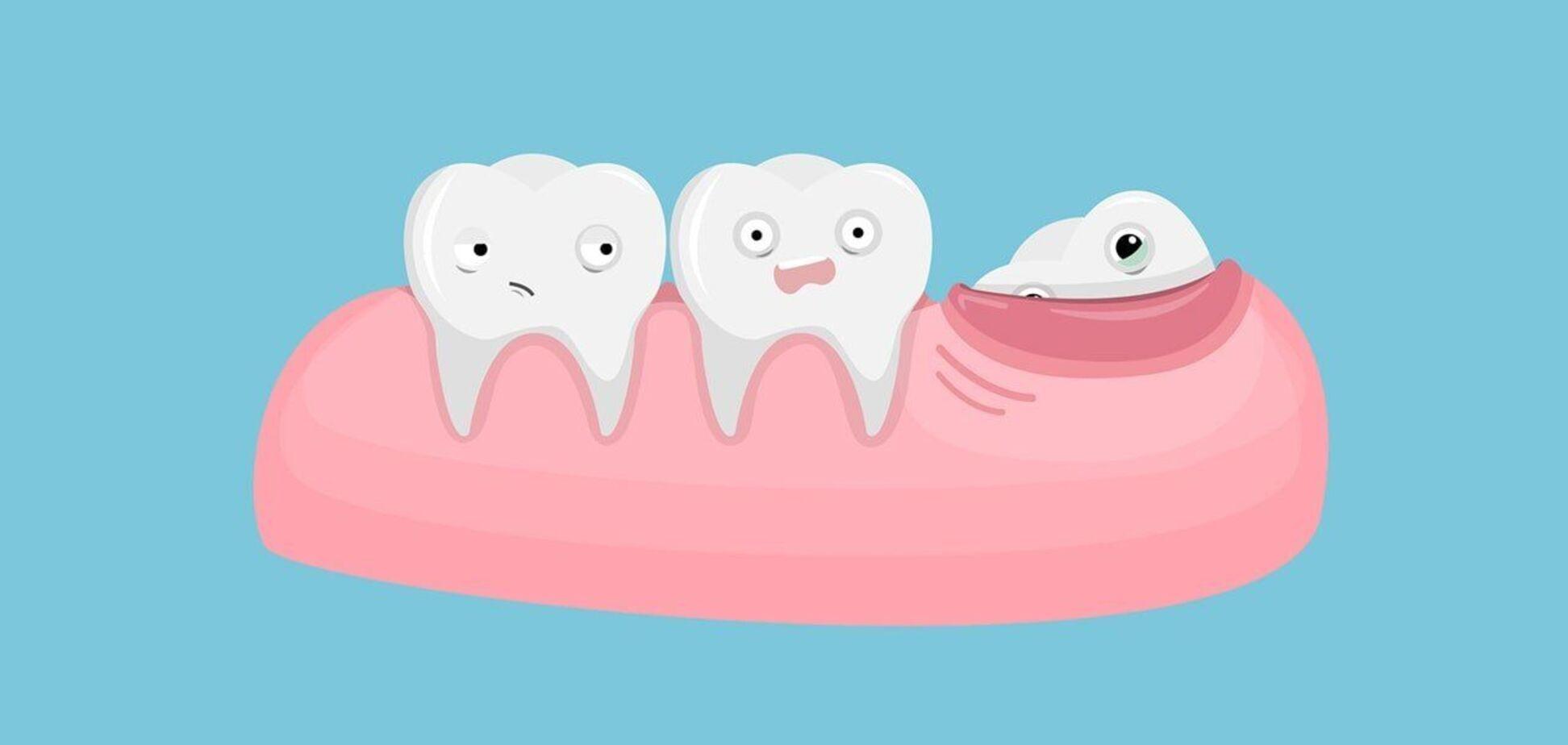 'Зубы мудрости': удалить нельзя оставить