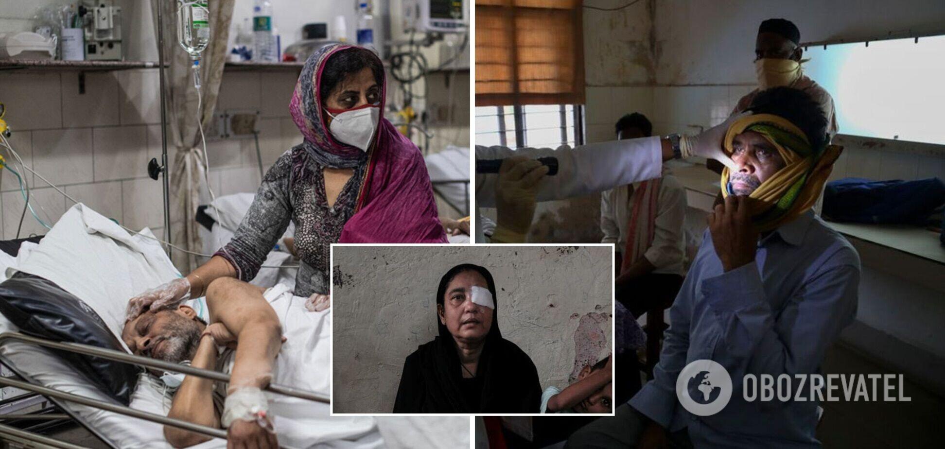 Индию поразил 'черный грибок': истории пациентов, которые после COVID-19 потеряли зрение. Фото