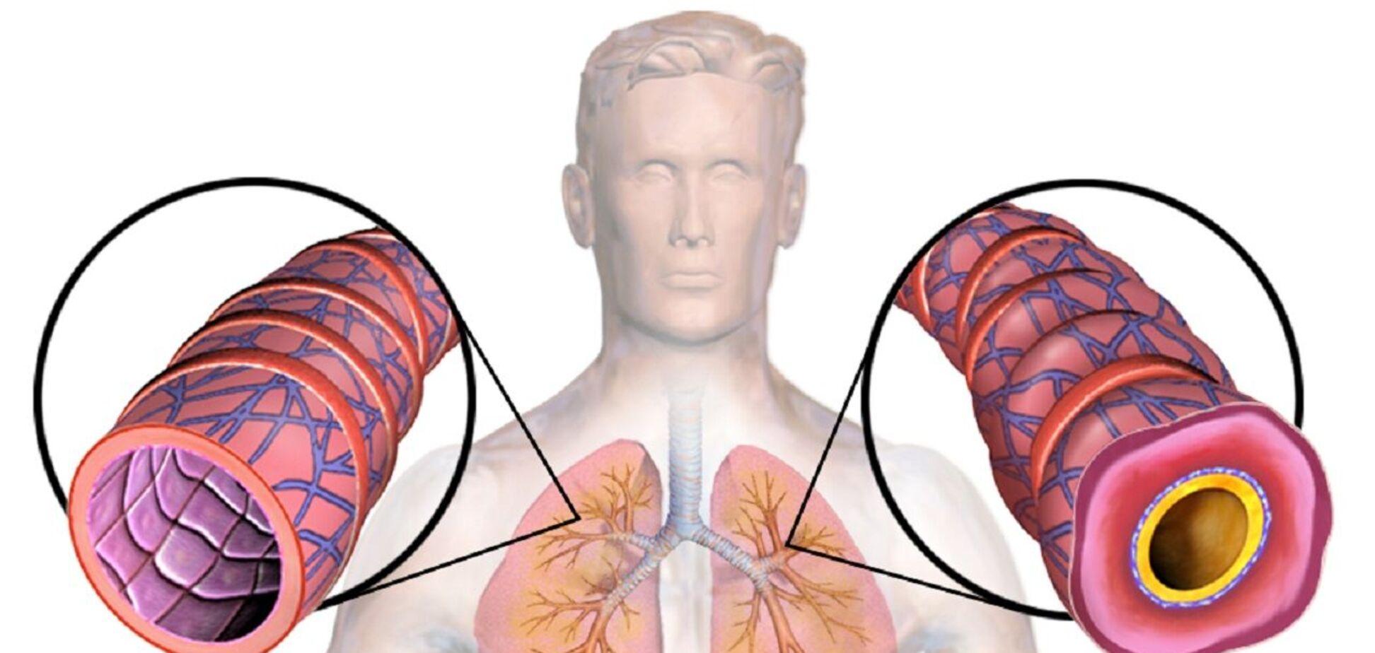 Разработан новый препарат для лечения тяжелой астмы